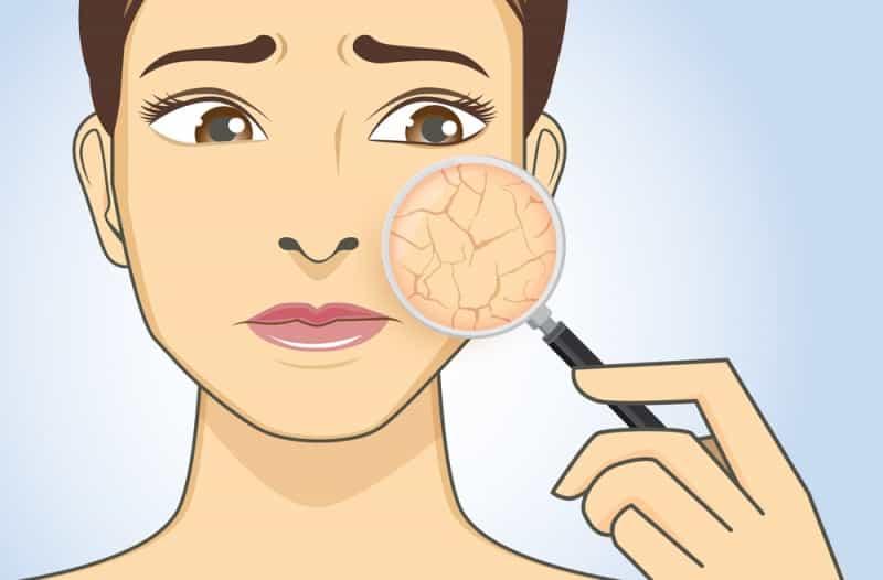 non-comedogenic moisturizer