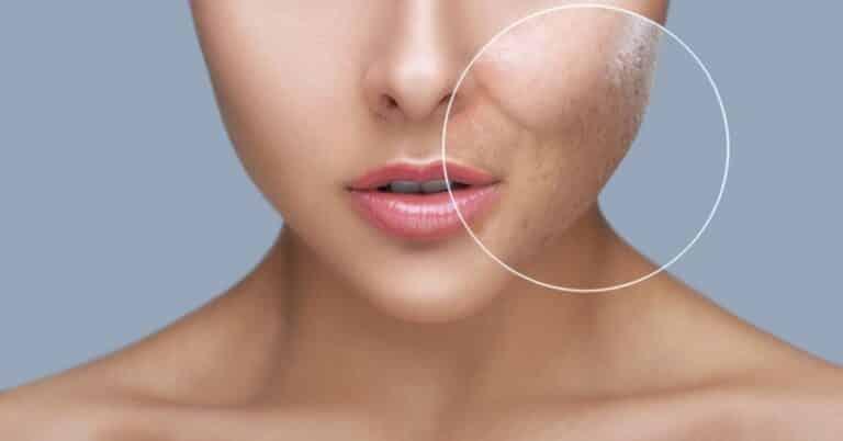 8 best moisturizer for large pores [2021]