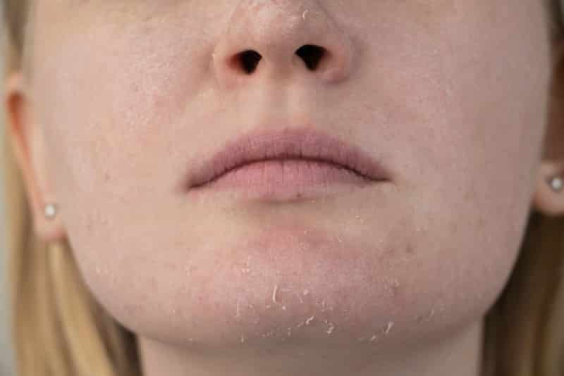 mature dry skin