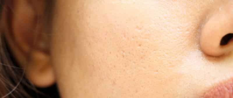 moisturizer for large pores